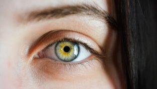 Occhi rossi: cause e soluzioni con l'omeopatia
