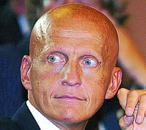 Pierluigi Collina arbitro calcio