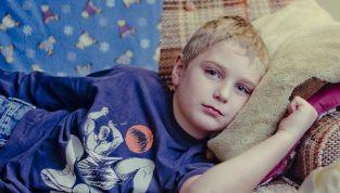 Mononucleosi bambini: sintomi e rimedi