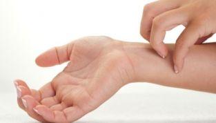 Cimici dei letti: come prevenirle e come eliminarle