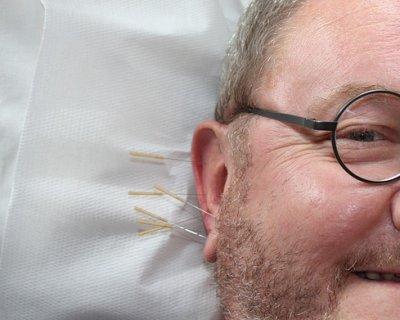 Agopuntura, cos'è e a cosa serve
