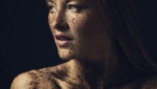 Dermatillomania: torturarsi la pelle per mostrare un disagio interiore