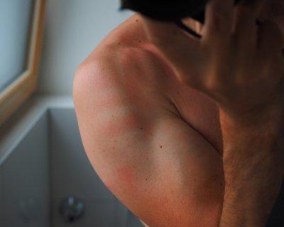 Macchie solari sulla pelle: cosa sono e come curarle