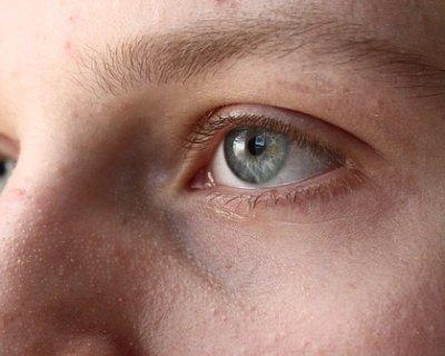 Punti neri sul naso: fastidiose imperfezioni che si possono eliminare